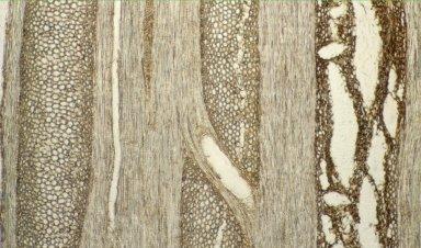 MENISPERMACEAE Caryomene olivacens