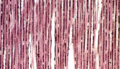 PERIDISCACEAE Soyauxia grandifolia