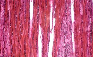 LEGUMINOSAE PAPILIONOIDEAE Zollernia paraensis