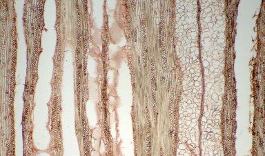 MORACEAE Plecospermum spinosum