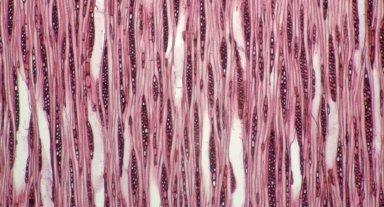 MARCGRAVIACEAE Norantea microscypha