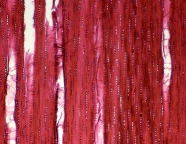 MYRTACEAE Plinia pinnata