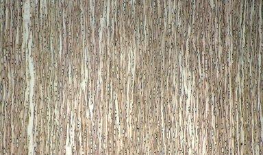 RUBIACEAE Arcythophyllum nitidum
