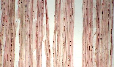 RUBIACEAE Pleiocarpidia assanthanica