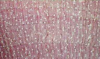 RUBIACEAE Ronabea latifolia