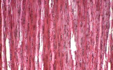 RUTACEAE Zanthoxylum fagara