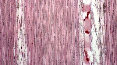 SAPINDACEAE Nephelium lappaceum