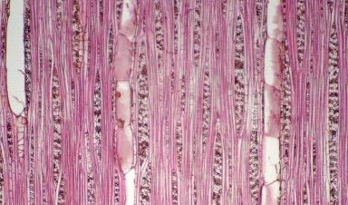 MALVACEAE BYTTNERIOIDEAE Guazuma ulmifolia