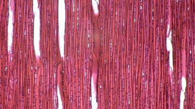 STYRACACEAE Pamphilia aurea