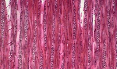 URTICACEAE Leucosyke capitellata