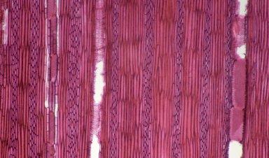 URTICACEAE Urera robusta