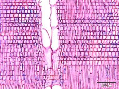 EBENACEAE Diospyros heterotricha