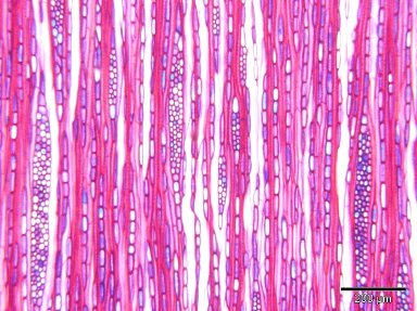 ERICACEAE Lyonia ovalifolia