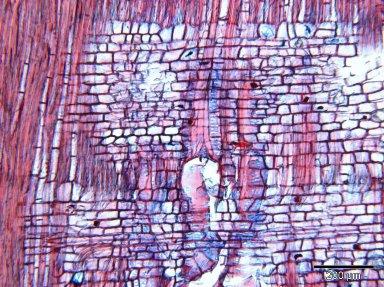 LECYTHIDACEAE Careya arborea