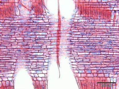 LECYTHIDACEAE Petersianthus macrocarpus