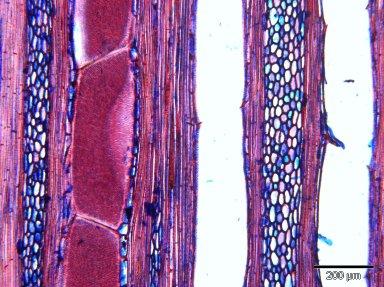 MARCGRAVIACEAE Marcgravia pedunculosa