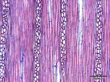 PRIMULACEAE MYRSINOIDEAE Oncostemum venulosum
