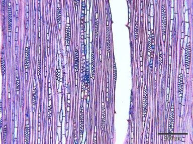 SAPOTACEAE Chrysophyllum albidum