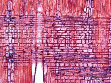 SAPOTACEAE Sideroxylon puberulum