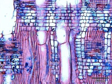 SAPOTACEAE Tieghemella heckelii