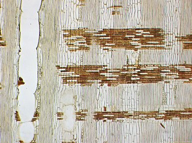 LEGUMINOSAE DETARIOIDEAE Brachystegia cynometroides
