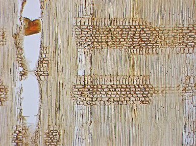 LEGUMINOSAE CAESALPINIOIDEAE Gilbertiodendron dewevrei