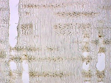 MYRTACEAE Eucalyptus globulus