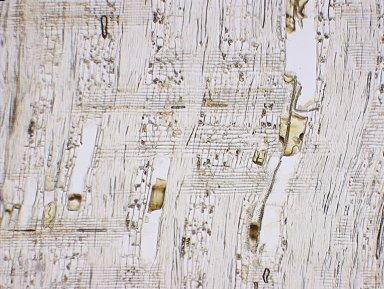 LEGUMINOSAE PAPILIONOIDEAE Dipteryx alata