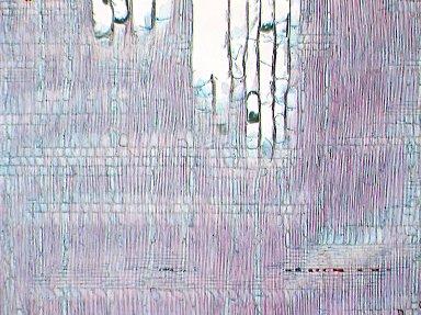 SAPOTACEAE Breviea leptosperma