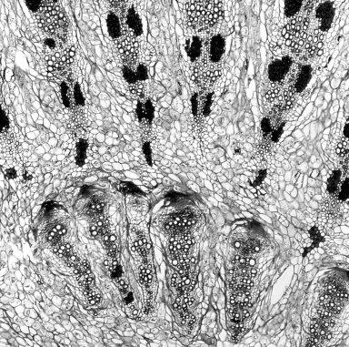 MISODENDRACEAE Misodendron brachystachyum