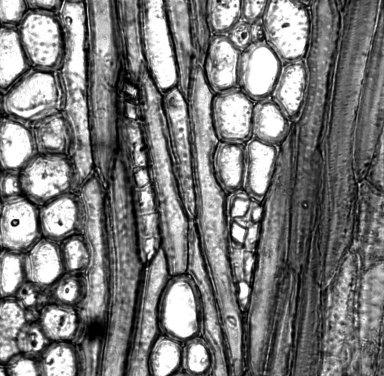 MALVACEAE GREWIOIDEAE Oceanopapaver neocaledonicum