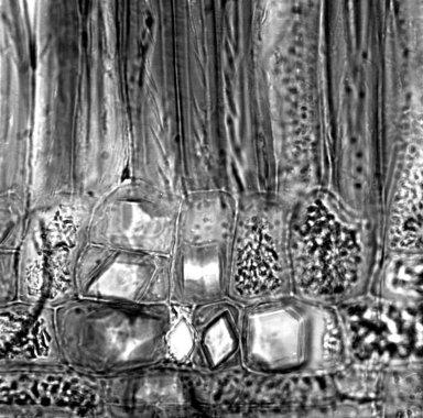 PITTOSPORACEAE Pittosporum gomonenense