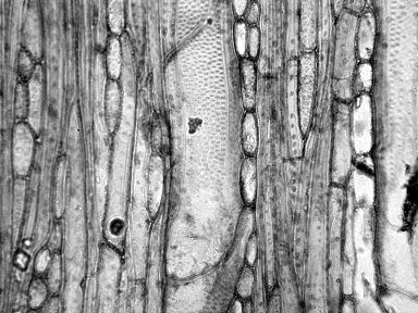 APOCYNACEAE Vallesia glabra