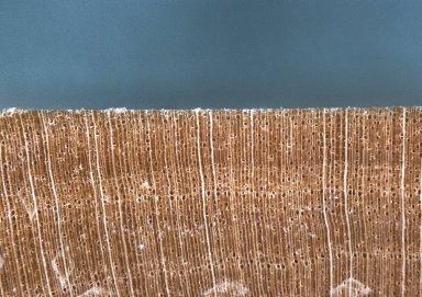RUBIACEAE Rothmannia whitfieldii