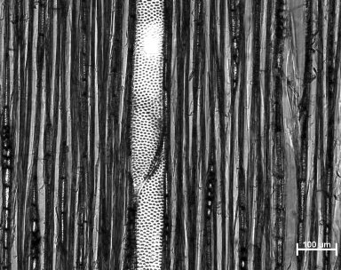 EUPHORBIACEAE Tetrorchidium didymostemon