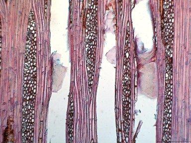 ANNONACEAE Hexalobus salicifolius