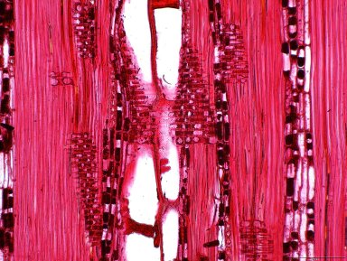 LEGUMINOSAE DETARIOIDEAE Cynometra ananta