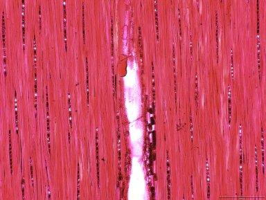 LEGUMINOSAE CAESALPINIOIDEAE Cynometra ananta