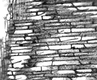 ANNONACEAE Xylopia ferruginea