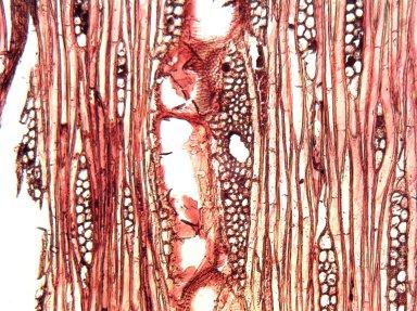 ANACARDIACEAE Loxopterygium huasango