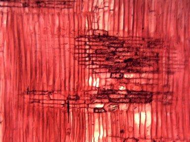 ANACARDIACEAE Metopium toxiferum