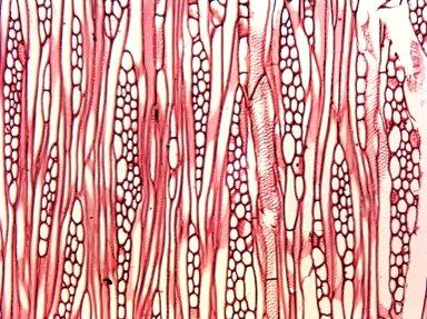 ASTERACEAE Dasyphyllum diacanthoides