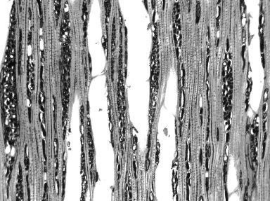 CELASTRACEAE Pterocelastrus variabilis