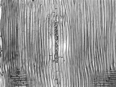 LEGUMINOSAE CAESALPINIOIDEAE Mimosoid Clade Albizia glaberrima