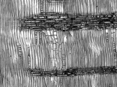 LEGUMINOSAE CAESALPINIOIDEAE Mimosoid Clade Acacia pubescens