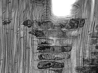 LYTHRACEAE Lagerstroemia calyculata