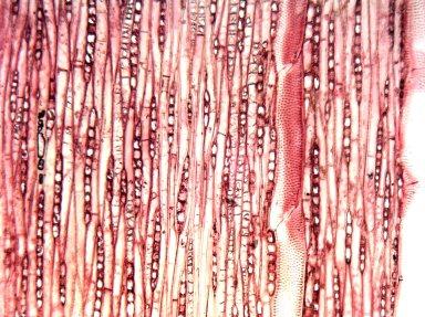 LYTHRACEAE Lagerstroemia subcostata