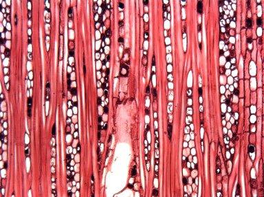MALVACEAE GREWIOIDEAE Lueheopsis rugosa