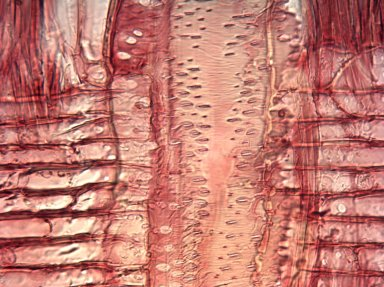 LEGUMINOSAE PAPILIONOIDEAE Myrospermum frutescens