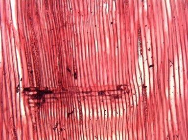 LEGUMINOSAE MIMOSOIDEAE Serianthes myriadenia